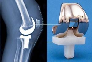 TKR - Final Solution to Oteoarthritis